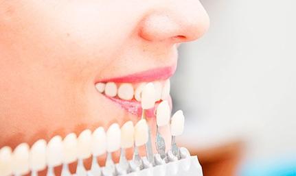 Отбеливание зубов в стоматологической клинике в Мытищи
