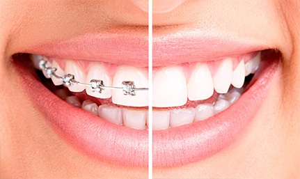 Исправление прикуса в стоматологической клинике В Мытищи