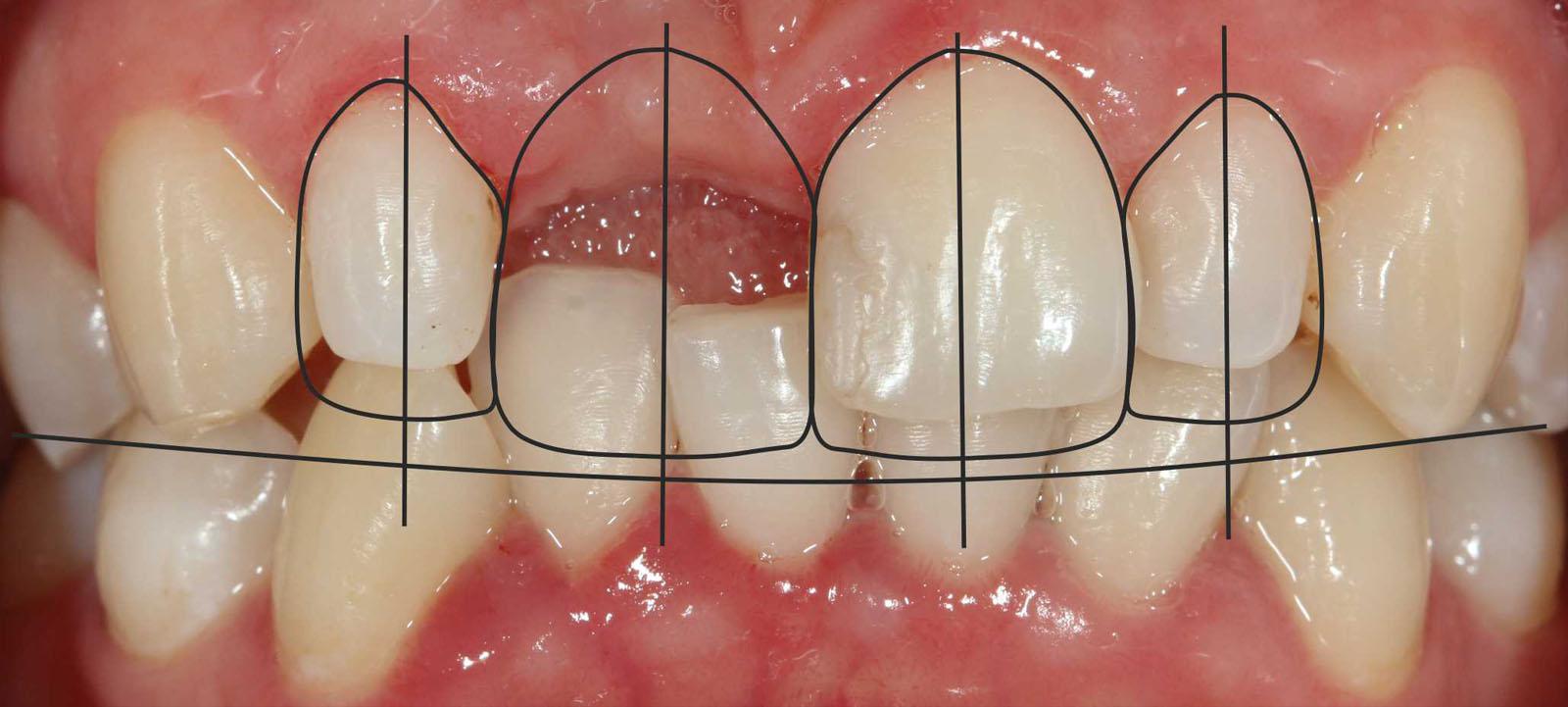 Как самому сделать передний зуб