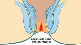 analnoe-treshine-lekarstva