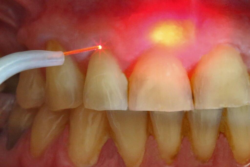 Удаление кисты зуба цена москва