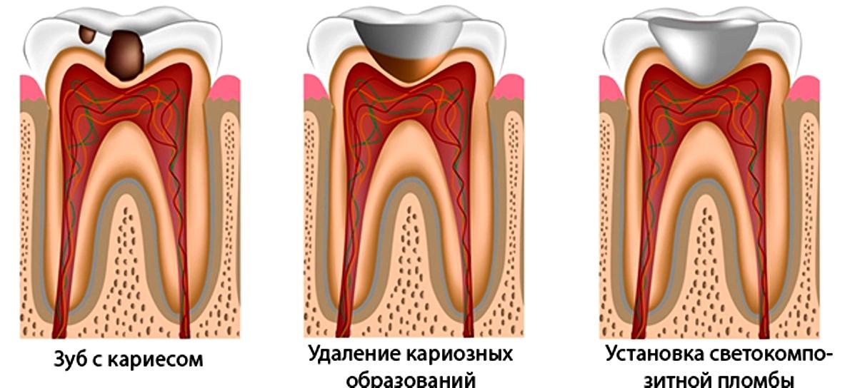 Как вылечить кариес и восстановить зубы в домашних условиях