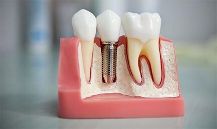 Протезирование зубов в клинике Мытищи
